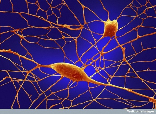 From inside the human body microscopic images amazing news - Pure kindje ...